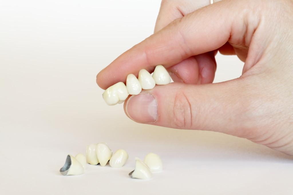 Protetyka stomatologiczna Stalowa Wola - protezy zębowe, mosty protetyczne