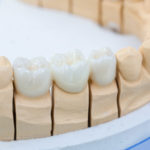 Różnice między implantem a protezą zębową